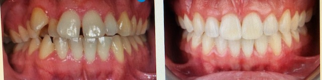 before and after picture from Invisalign